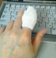 こんなんじゃパソコン無理……人差し指のけが